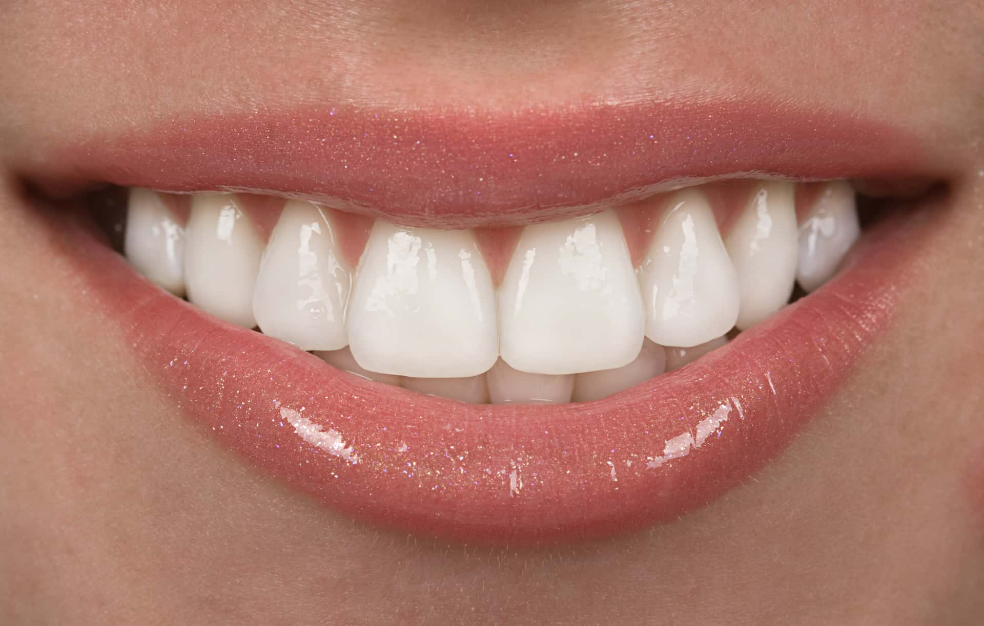 veneers vs crowns